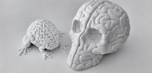 Emilio_Garcia_skull_brain